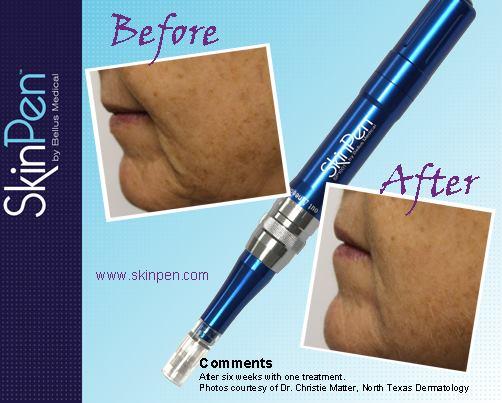 skinpen-houston-wrinkles-skin